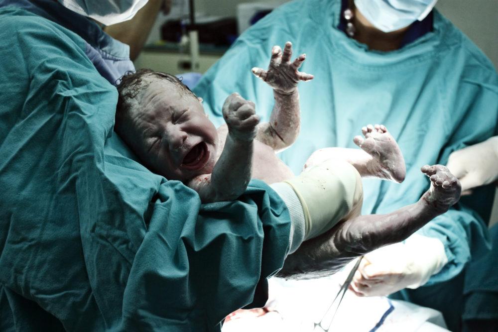 parto natural o cesárea